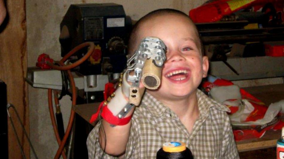 Ręka (Robohand) wydrukowana dla 5-latka-1