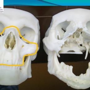 Przy pierwszym przeszczepie twarzy w Polsce pomogła drukarka 3D
