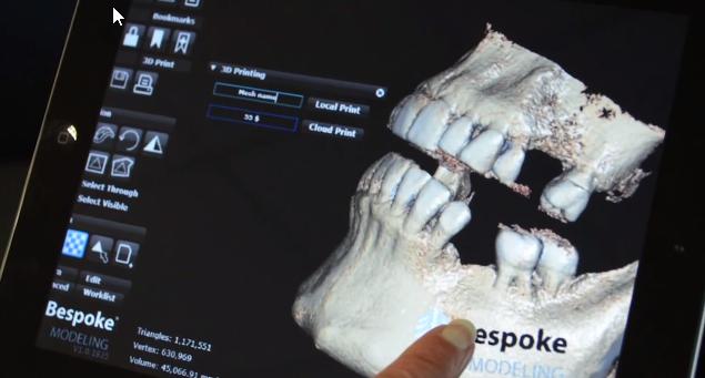 3D Systems wprowadza nową usługę dla lekarzy