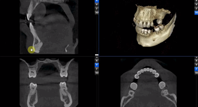 3D Systems wprowadza nową usługę dla lekarzy-2