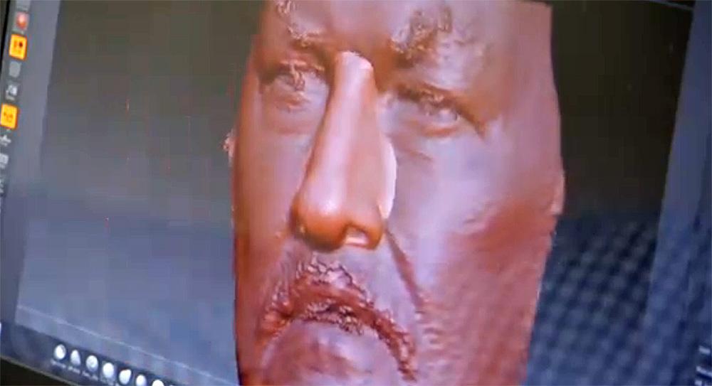 Francuski pacjent dostaje wydrukowany nos
