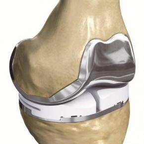 Druk 3D rewolucjonizuje chirurgię stawu kolanowego