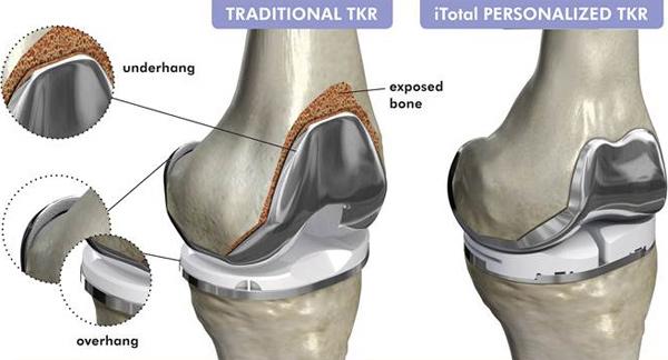 Druk 3D rewolucjonizuje chirurgię stawu kolanowego-3