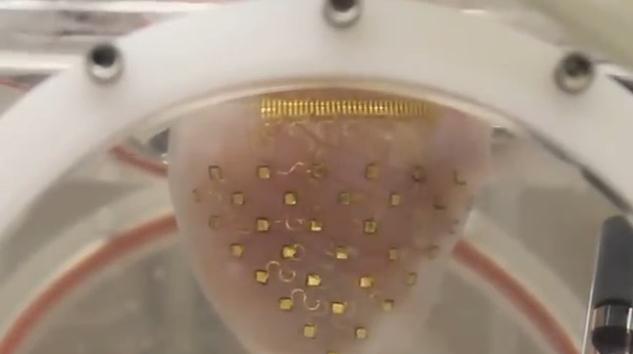 Urządzenie, które może przewidzieć zbliżający się zawał serca1