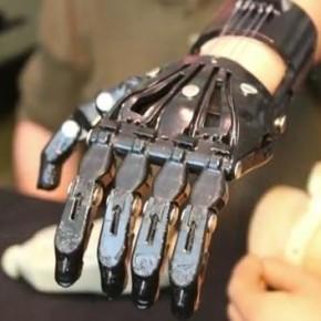 Porównanie protezy za 42 tys.$ z wydrukowaną na drukarce 3D za 50 $!