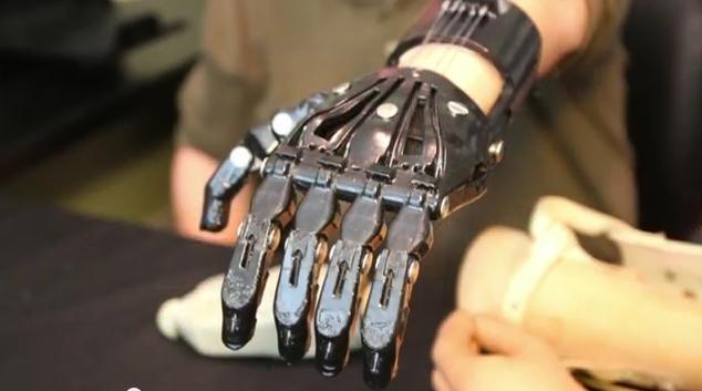 Porównanie protezy za 42 tys. $ z wydrukowaną na drukarce 3D za 50 $!