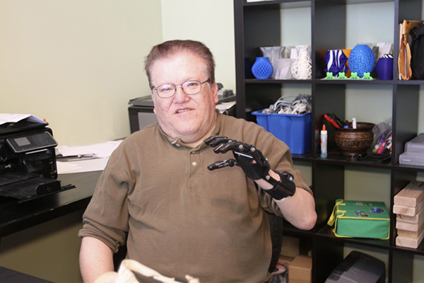 Porównanie protezy za 42 tys. $ z wydrukowaną na drukarce 3D za 50 $! (2)
