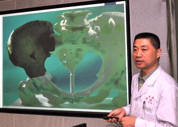 w chinach wszczepiono drukowane kosci-4