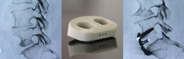 Pierwsza taka operacja kręgosłupa na świecie z wykorzystaniem drukarkowanych implantów