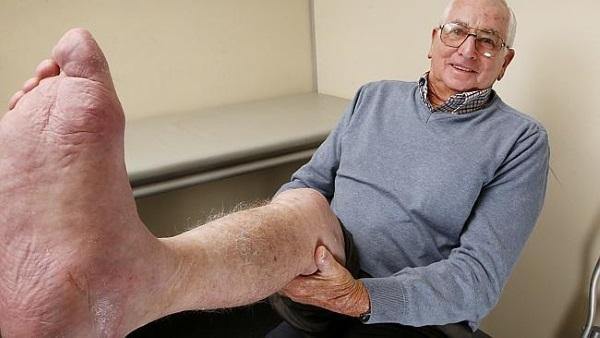Lekarze użyli drukarki 3D,aby uratować stopę 71-letka walczącego z rakiem1