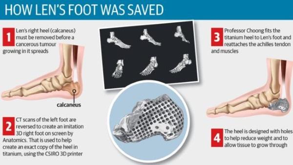 Lekarze użyli drukarki 3D,aby uratować stopę 71-letka walczącego z rakiem2