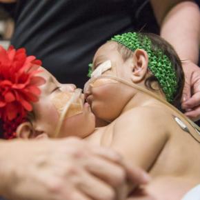 Chirurdzy z Houston rozdzielili 10 miesięczne bliźniaczki syjamskie